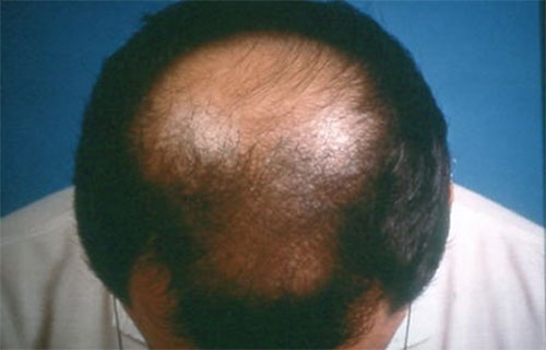 Androgenic-alopecia _ Spot Blandness treatment