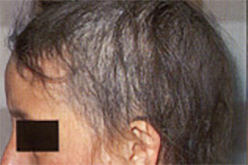 Telogen-effluvium Treatment
