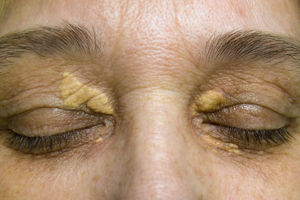 Xanthelasma Treatment - Skin Specialist Singapore