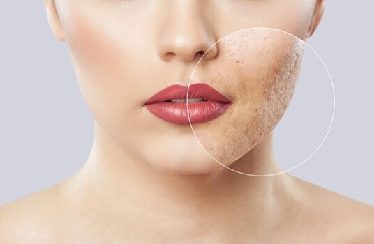 Aesthetic Treatment at Joycelim Skin & Laser Clinic