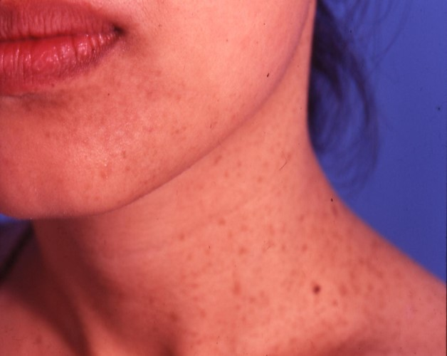 Birthmark on Neck - Skin Specialist
