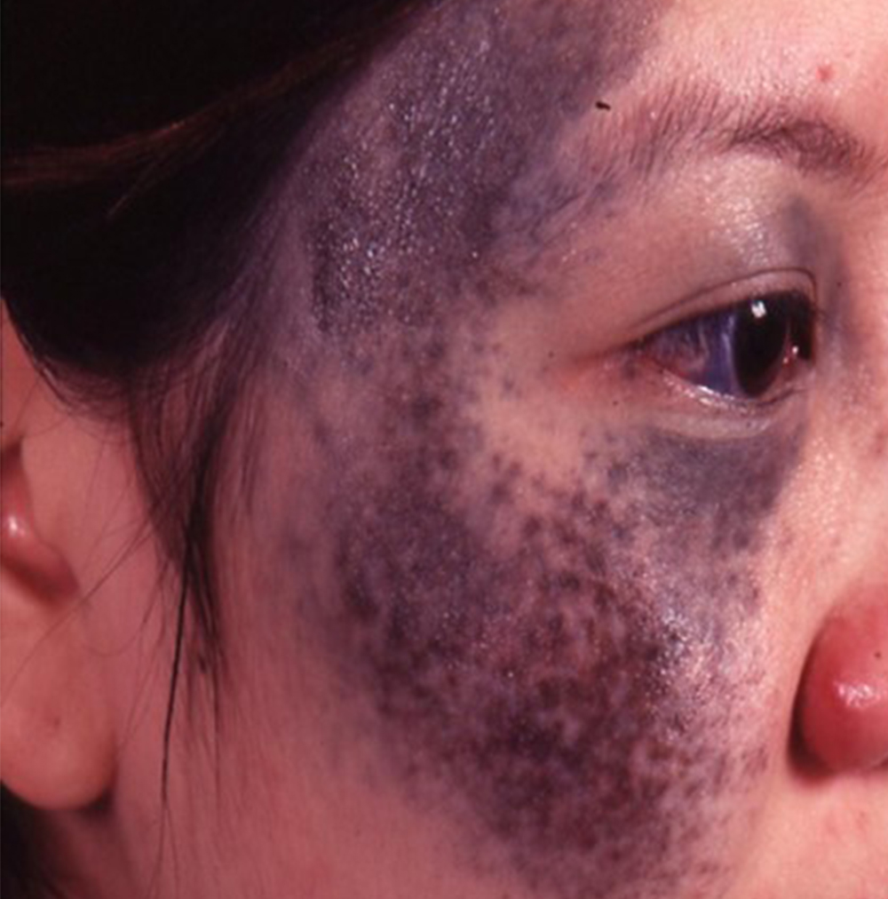Birthmark Removal Treatment