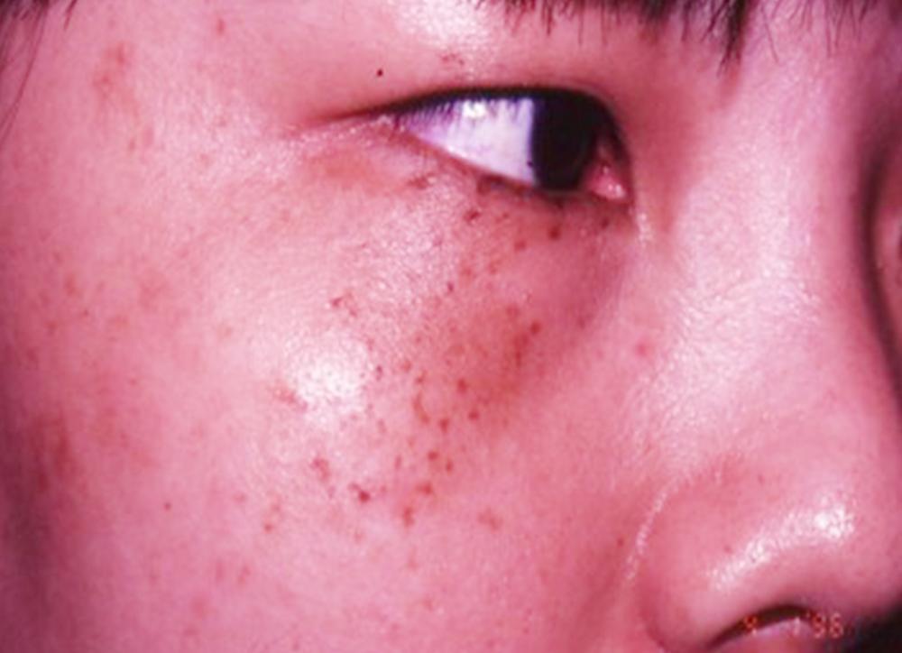 Birthmark on Face - Dermatologist