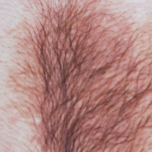 Birthmark Removal Singapore