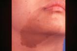 Birthmark Removal