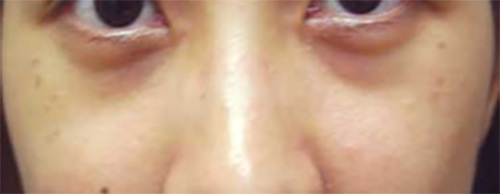 Dark Eye Treatment