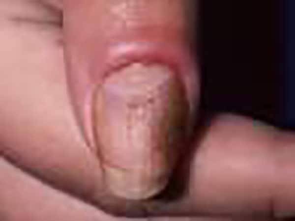 Nail Problem - Skin Specialist