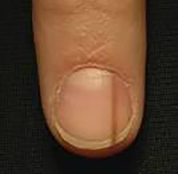 Nail Problem - Dermatologist Singapore