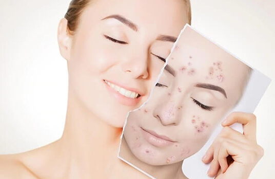 Medical Aesthetics - Dermatologist Singapore