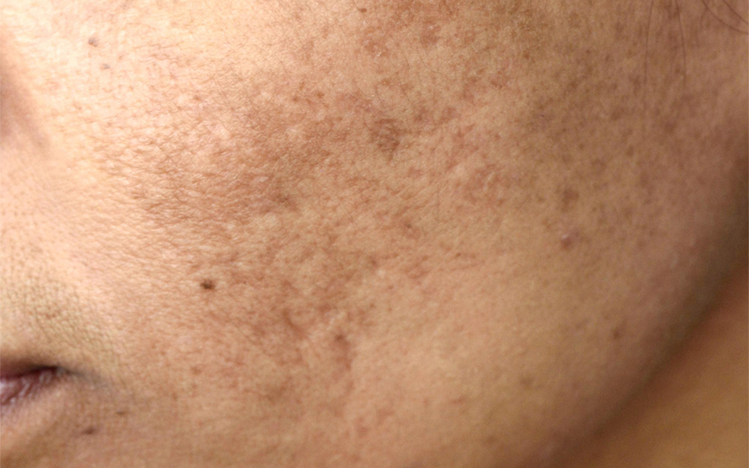 Melasma Treatment - by Skin Specialist Dr Joycelim