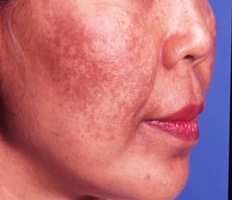 Melasma Treatment