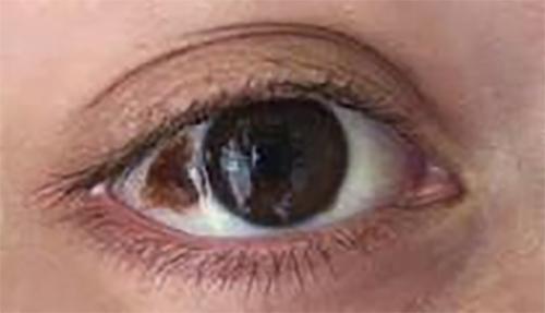 Birthmark in Eye -Treatment