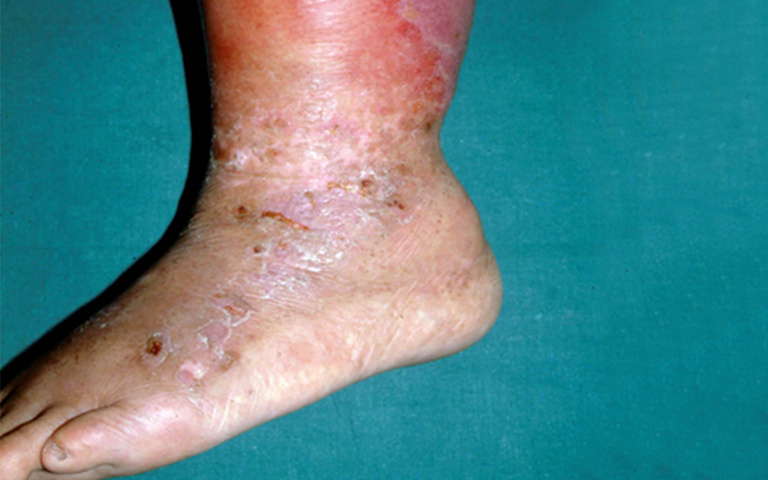 Skin Infection Treatment