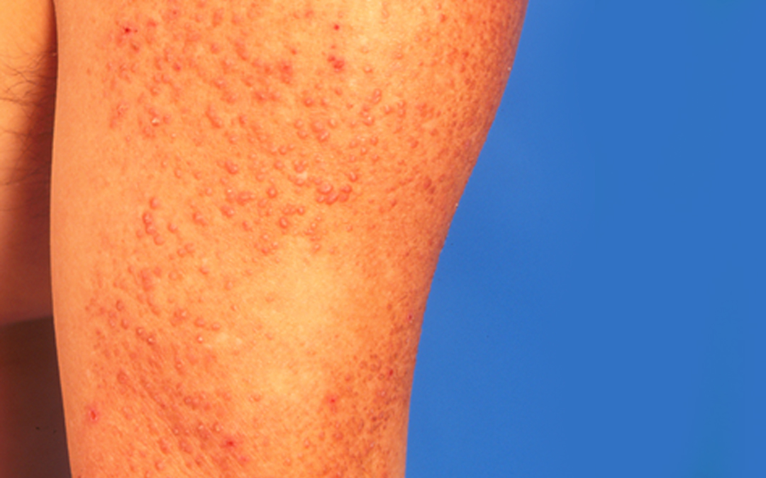 Skin Rash Treatment