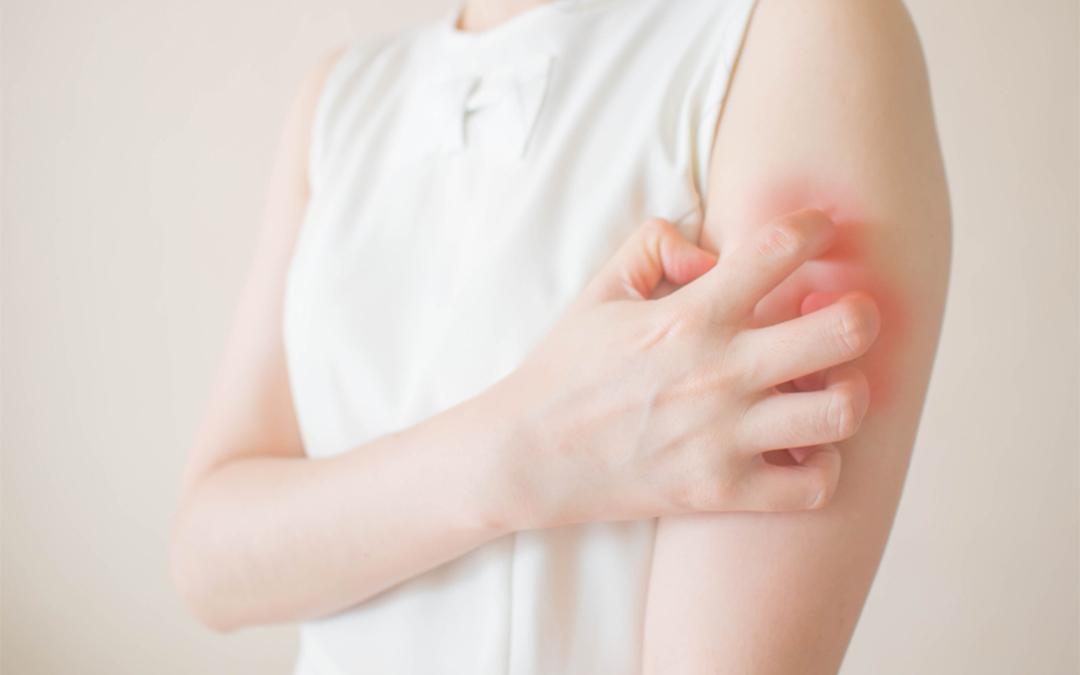 Skin Rash Treatment - Skin Specialist Singapore