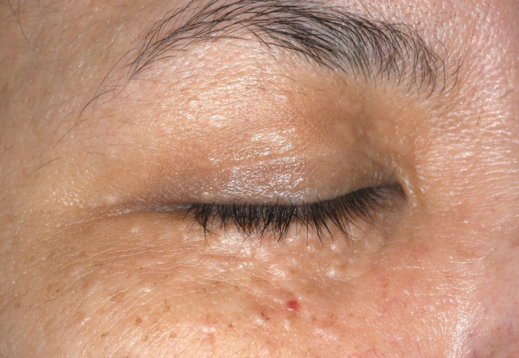 Syringoma Treatment - Skin Specialist Singaproe