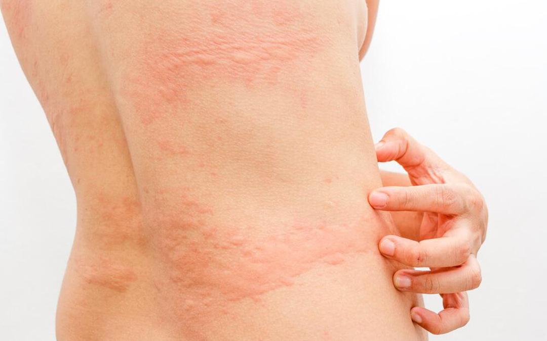 Urticaria Treatment - by Skin Specialist