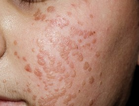 viral warts treatment