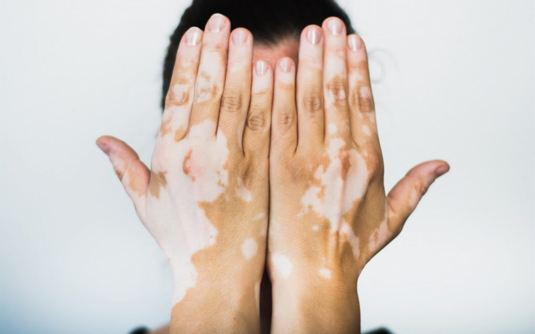 vitiligo treatment - Dermatologist Singapore