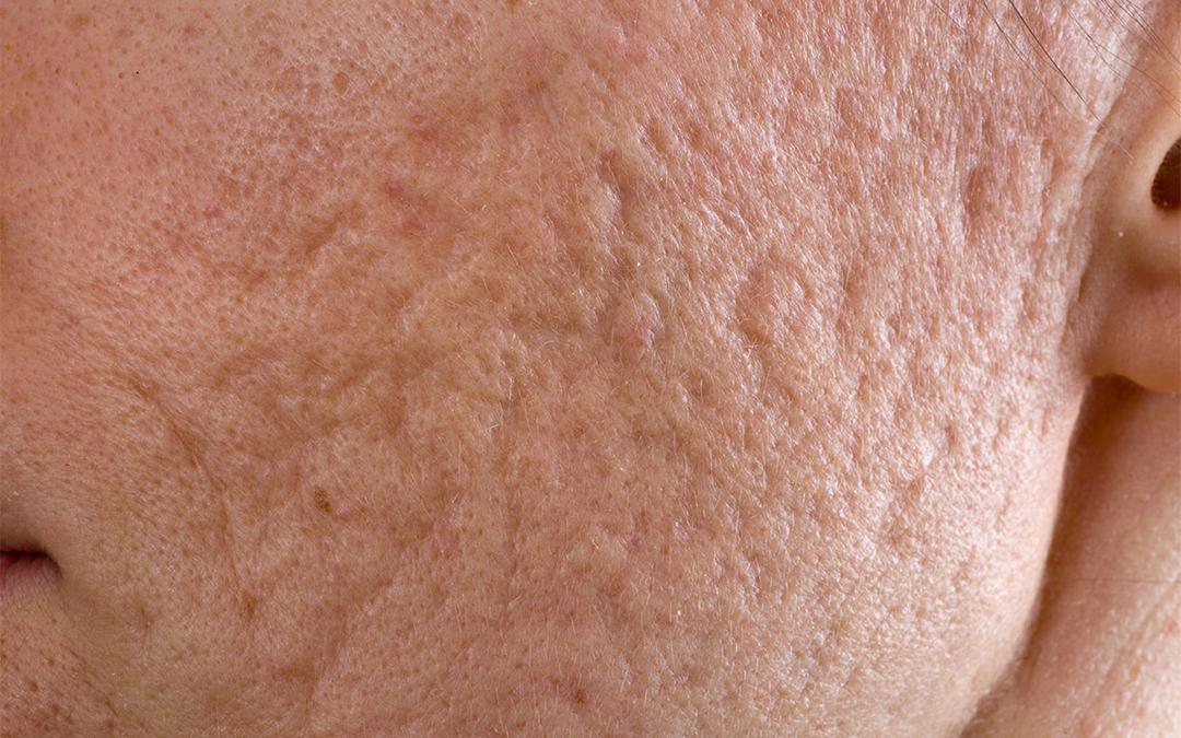 Acne Scar Removal - Dermatologist
