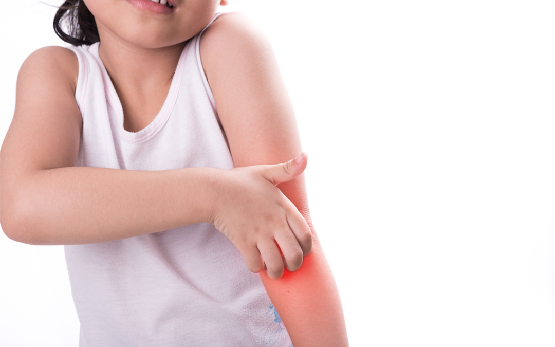 Eczema Treatment for Children