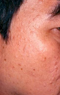 Benign Skin Growths Removal