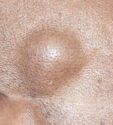 Benign Skin Growths Removal