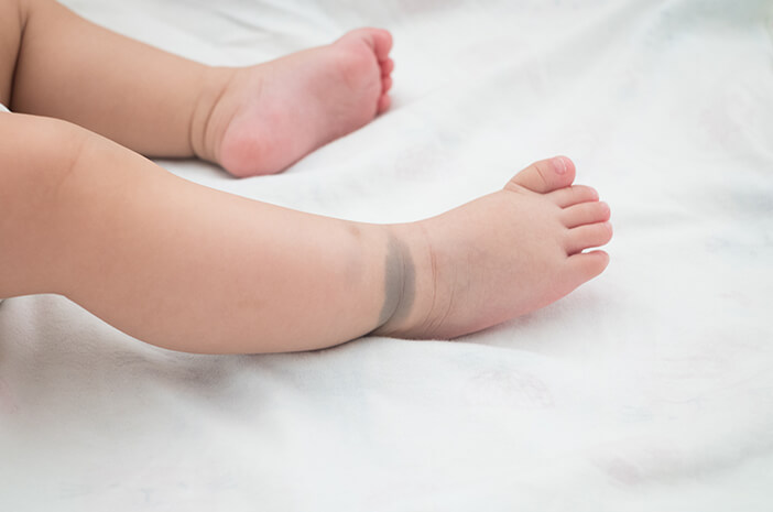Birthmark In Children