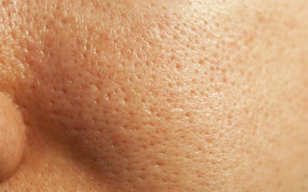 pore size reduction - Joycelim Skin & Laser Clinic
