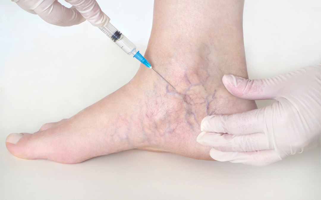 sclerotherapy for veins