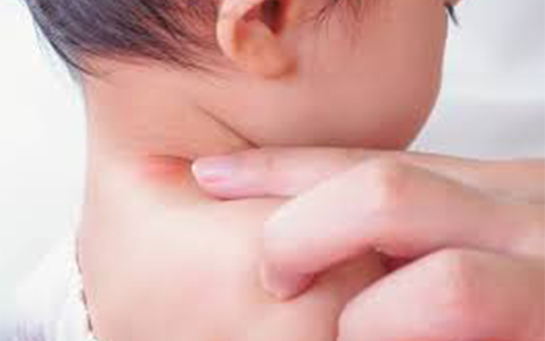 Skin Rash Treatment for Children - Dermatologsit