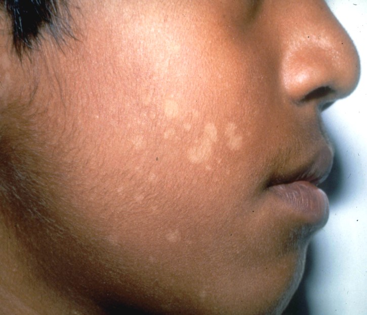 Skin Infection Treatment for Children