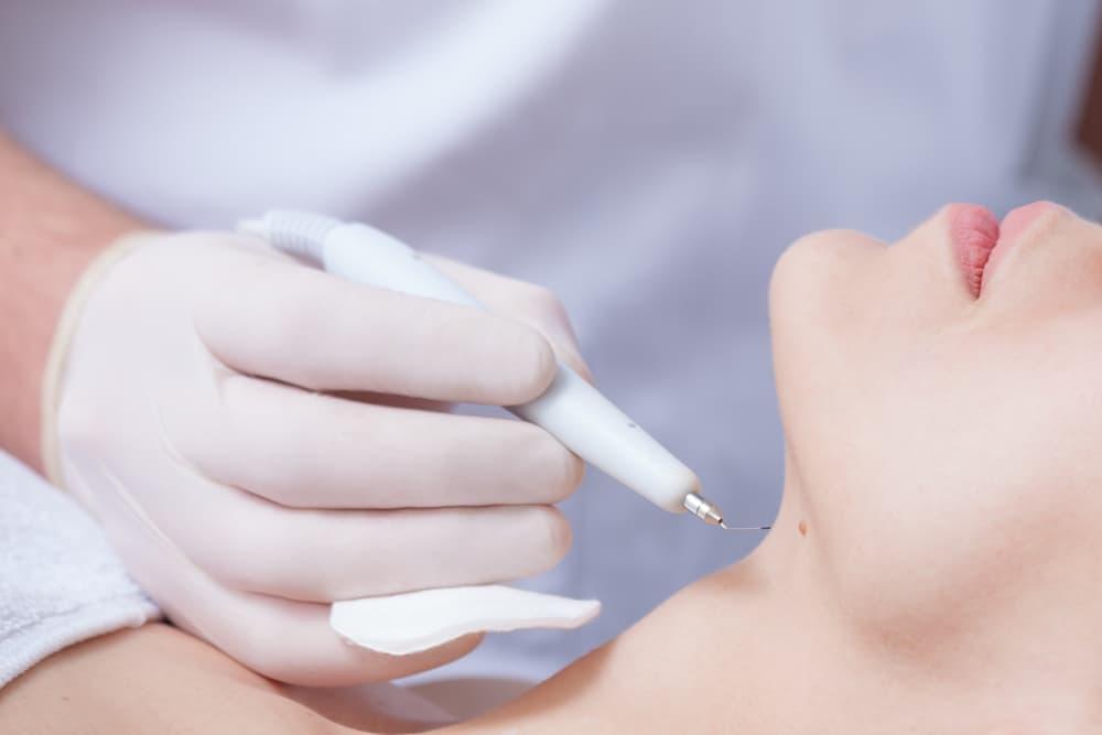 Skin Cancer Diagnosis & Treatment