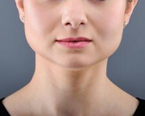 Facial Shaping - Joycelim Skin & Laser Clinic