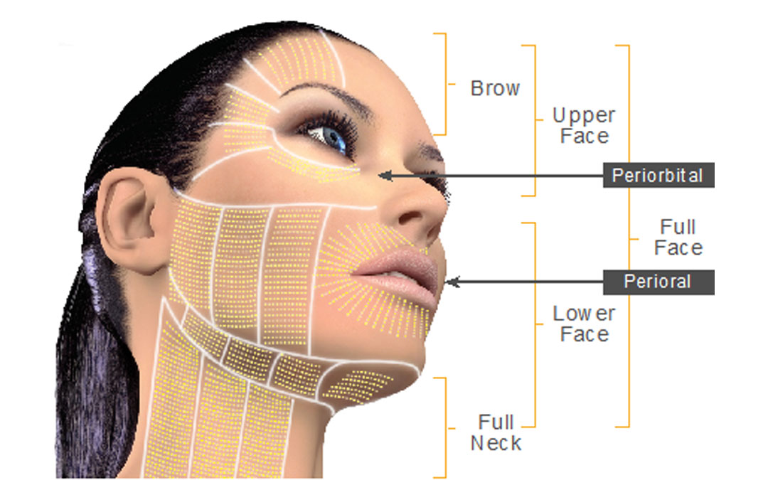 Non Surgical Skin Lifting