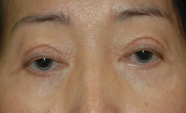 Droopy Eyelid Treatment by Botox