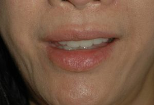 Botox for Smile Lines - Dermatologist