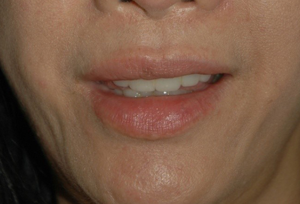 Botox for Smile Lines - Dermatologist