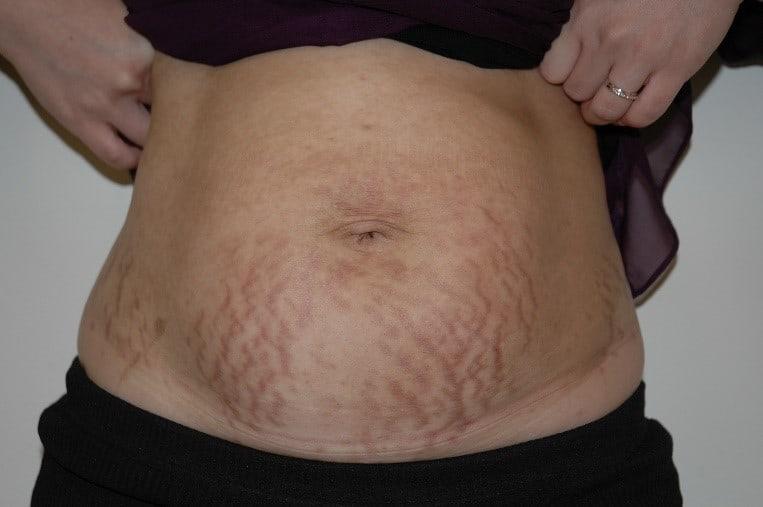 Stretch Marks Pregnancy
